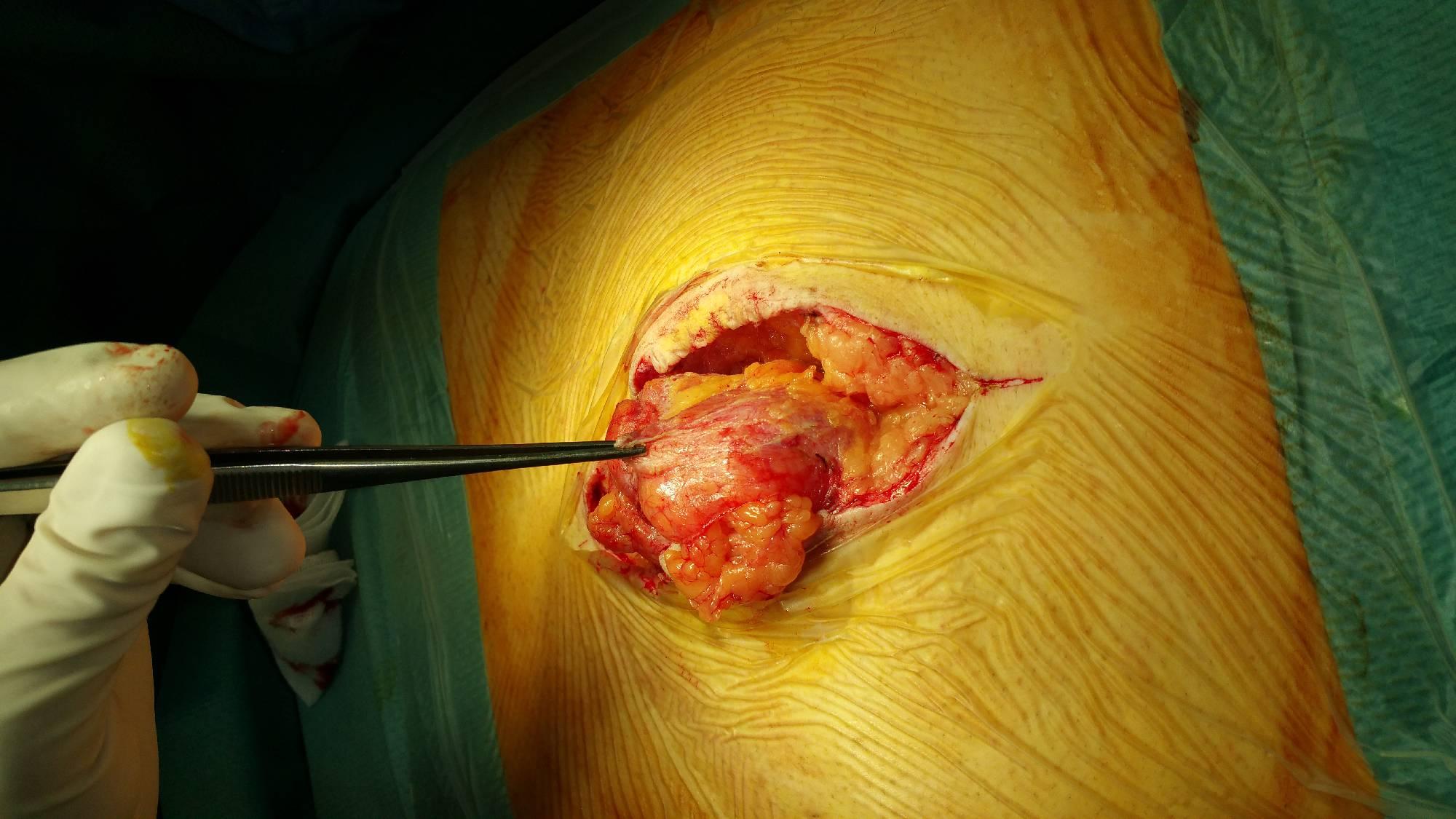 Medlife cura laparoscopica a herniei inghinale
